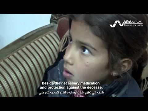 Leishmaniasis disease spreads in northeastern Syria انتشار مرض اللشمانيا في ريفي قامشلو والحسكة