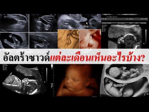 พัฒนาการทารกในครรภ์ : อัลตร้าซาวน์แต่ละเดือนเห็นอะไรบ้าง?   ตรวจครรภ์   คนท้อง Everything