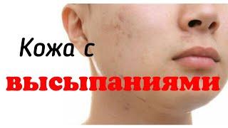 Опасные ошибки в уходе за проблемной кожей