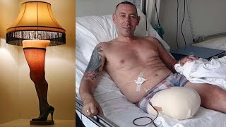 Man Turns Amputated Leg Into a Lamp