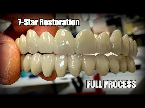Step-By-Step Full Process of Making a Full-Mouth 7-Star Restoration with Me