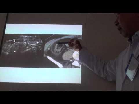 20130325_Chẩn đoán hình ảnh viêm ruột thừa (phần 1)