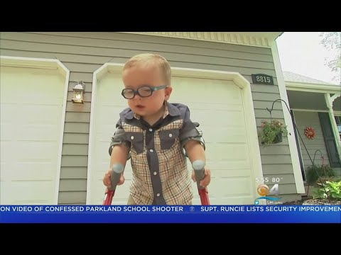 Two-Year-Old Overcomes The Odds And Learns To Walk