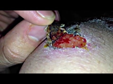 Scab removal