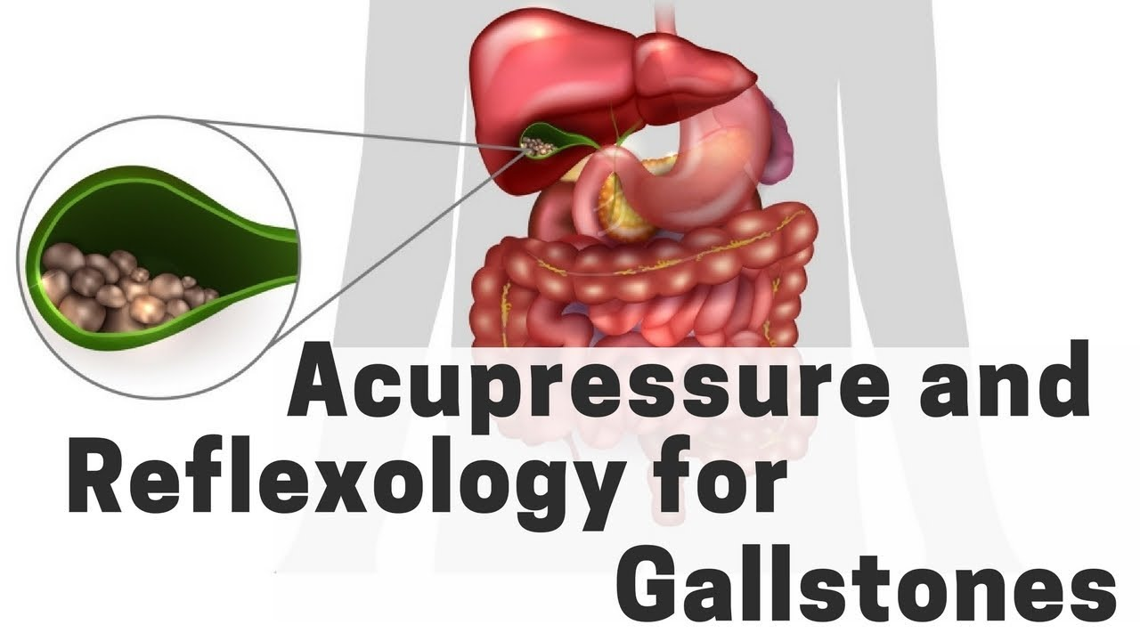 acupressure and reflexology for gallstones massage monday 385 gallbladder stones diagram [ 1280 x 720 Pixel ]