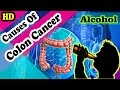 15 Comon Cause of Colon Cancer You Should Not Ignore