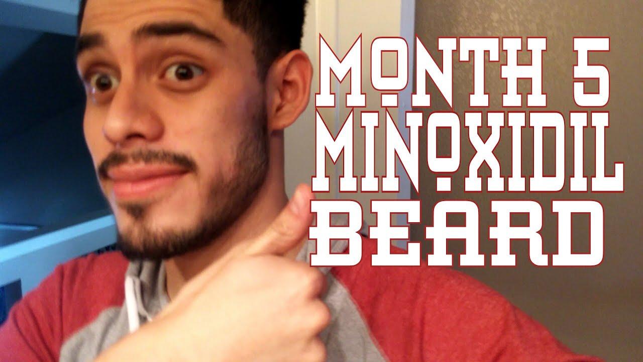 Month 5-minoxidil beard (week 20)