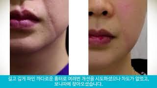 여성 외상 팔자주름 흉터제거 ( Female scar …