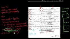 Pathophysiology of Seizures