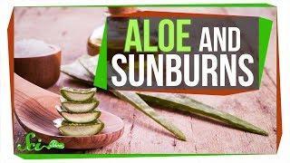Does Aloe Really Treat a Sunburn?