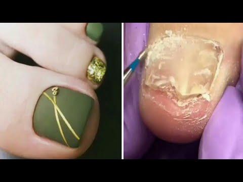 how to make ugly toenails pretty