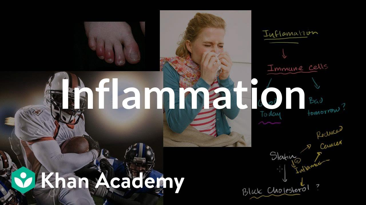 Inflammation | Miscellaneous | Heatlh & Medicine | Khan Academy