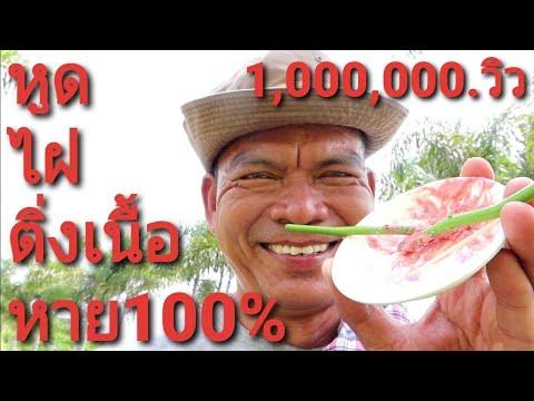 หูด ติ่งเนื้อ ไฝ ตาปลา รักษาแบบพื้นบ้าน หาย100%