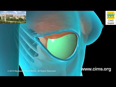 Breast Reconstruction - CIMS Hospital