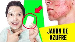 hqdefault - El Jabon De Azufre Sirve Para Acne Yahoo