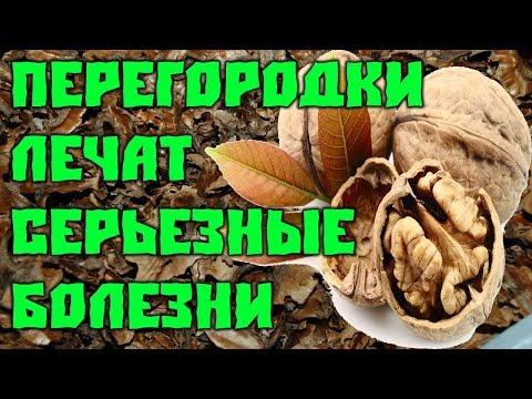 9 Серьёзных болезней Лечат перегородки Грецких орехов