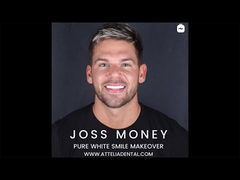 Joss Mooney (Hollywood smile) | Attelia Dental Turkey