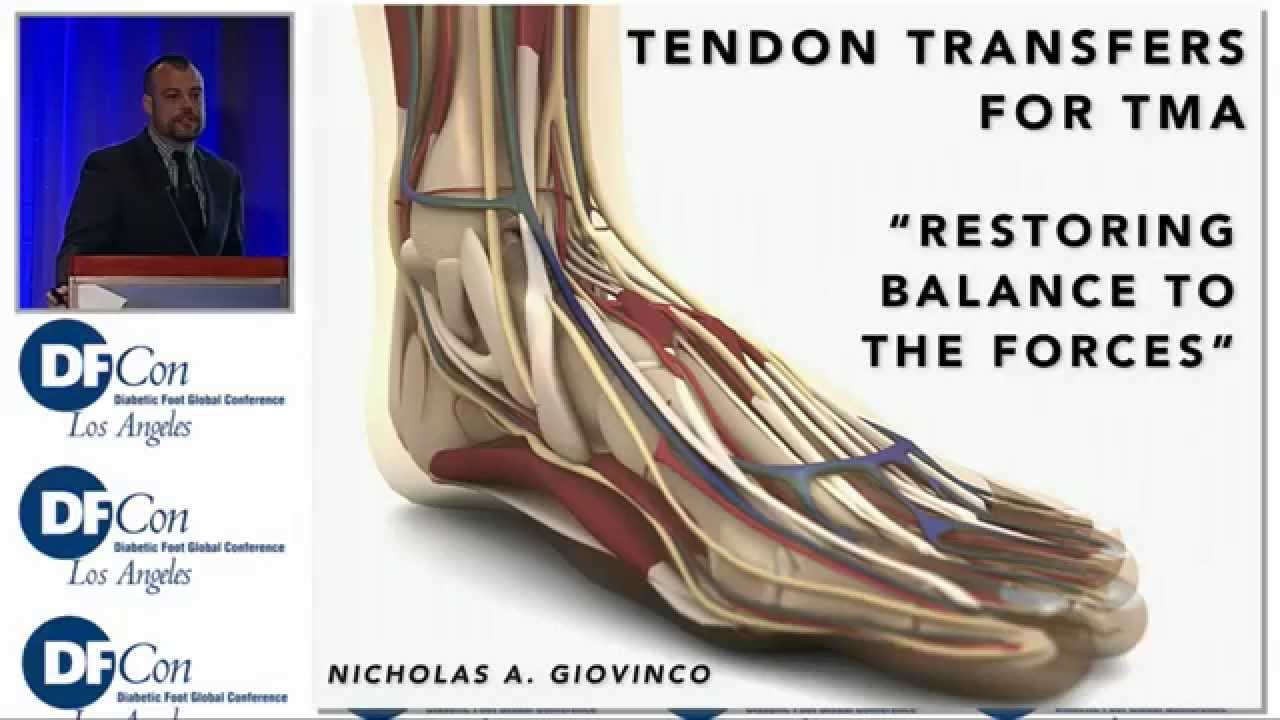 Tendon Transfer for TMA: Restoring Balance to the Forces - YouTube