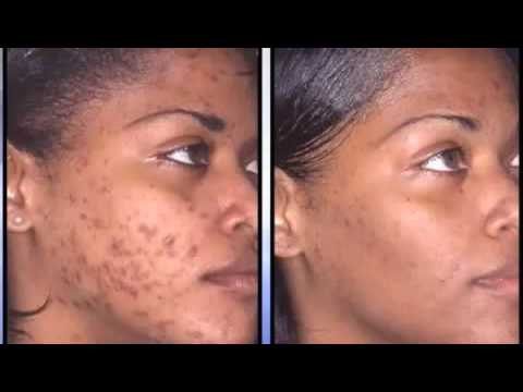 Acne Before And After Get The Cure Youtube