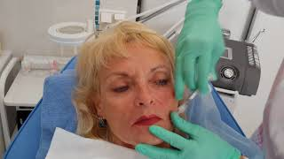 Меди-Лайт: Контурная пластика губ, уголки рта.