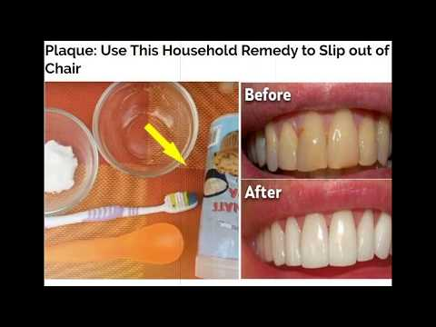 Plaque: Use This Household Remedy to Slip out of Your Dentist's Chair