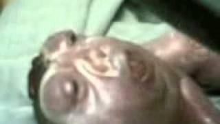 anencephalic baby