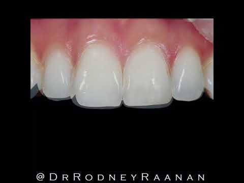 Beverly Hills Dentist Dr. Rodney Raanan, DDS MMSC - Beverly Hills Dentist