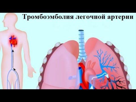 Опасное заболевание-тромбоэмболия легочной артерии.Причины и симптомы.
