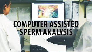 Computer assisted sperm analysis (CASA) of ram semen