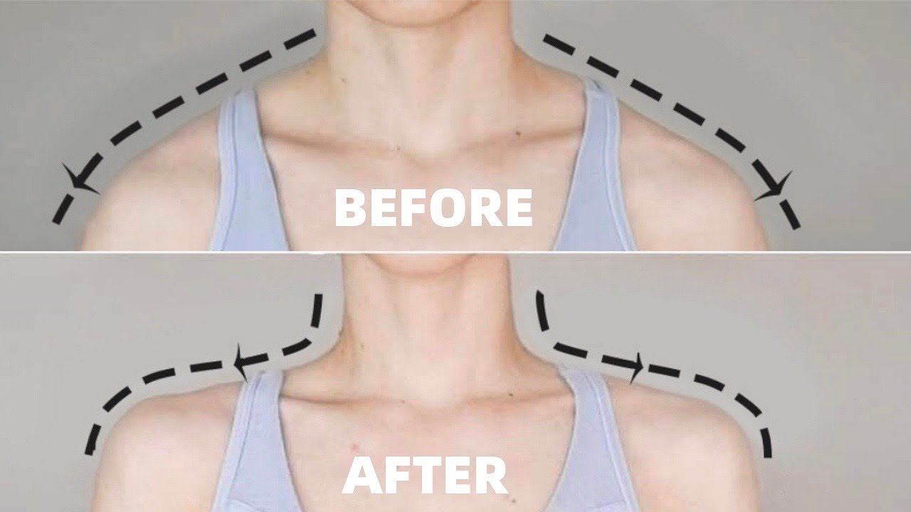 Get Beautiful Neck and Shoulders in 2 WEEKS | Fix Hunchback Posture