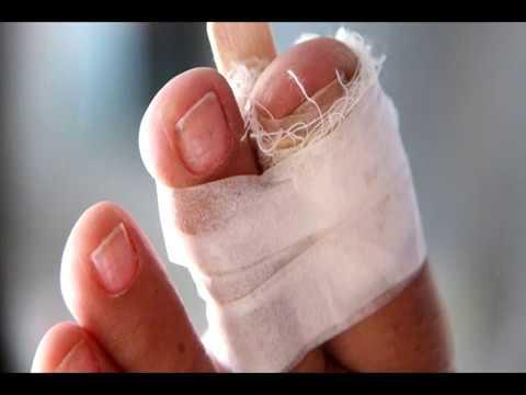 Вопрос: Как забинтовать травмированный палец на ноге?