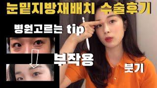 QnA 눈밑지방재배치 | 수술후기 | 부작용 | 붓기 …