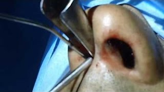 Does Nasal Surgery Help Cure Snoring - Dr Paulose FRCS (ENT)