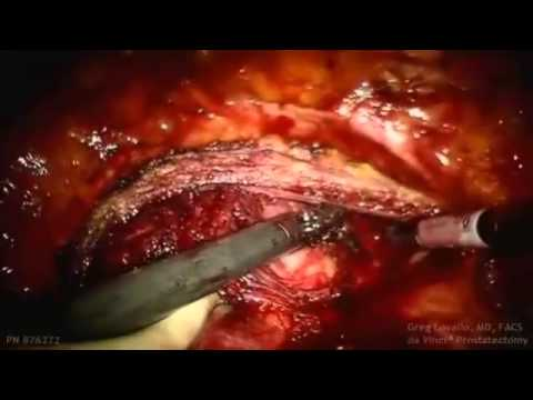 Dr. Lovallo Performing a robotic simple prostatectomy