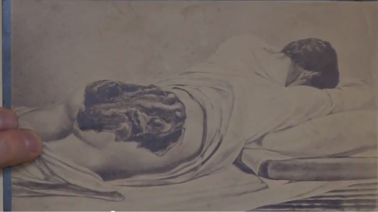 sketches of wounded civil war soldiers youtube
