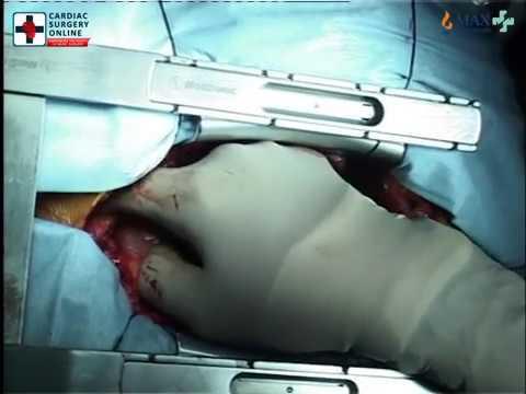 Open Heart Surgery : Off Pump Total Arterial Revascularisation