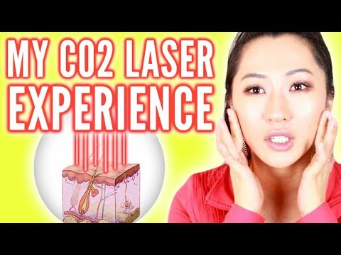 CO2 Laser for Acne Scars! Was it Worth it?