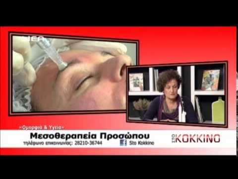 Μεσοθεραπεία Προσώπου..... Mesolift