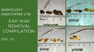 EAR WAX REMOVAL COMPILATION - EP 112