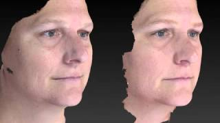 Rhinoplasty 3D Before and After-15