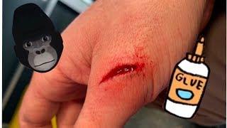 using-superglue-instead-of-stitches
