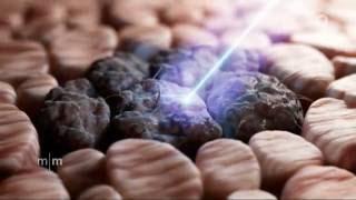 Wunderwaffe gegen Krebs? Kaltes Plasma