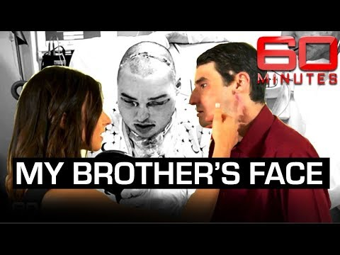 World first face transplant: meeting the man who wears 'my brother's face' | 60 Minutes Australia