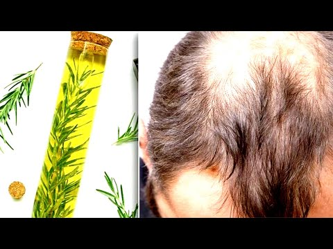 Put A Few Drops Of This serum On Your Scalp And Wait To See All Your Lost Hair Grow Back