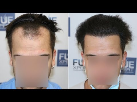 fue-hair-transplant-(2225-grafts-norwood-iii)-by-dr-juan-couto---fuexpert-clinic---madrid,-spain