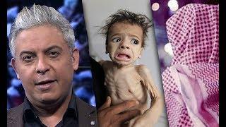 اليمن تموت جوعاً ورجل اعمال إماراتي يشتري عذرية فتاه بـ 3 مليون دولار..معتز مطر : كل اخ عربي اخي.؟!