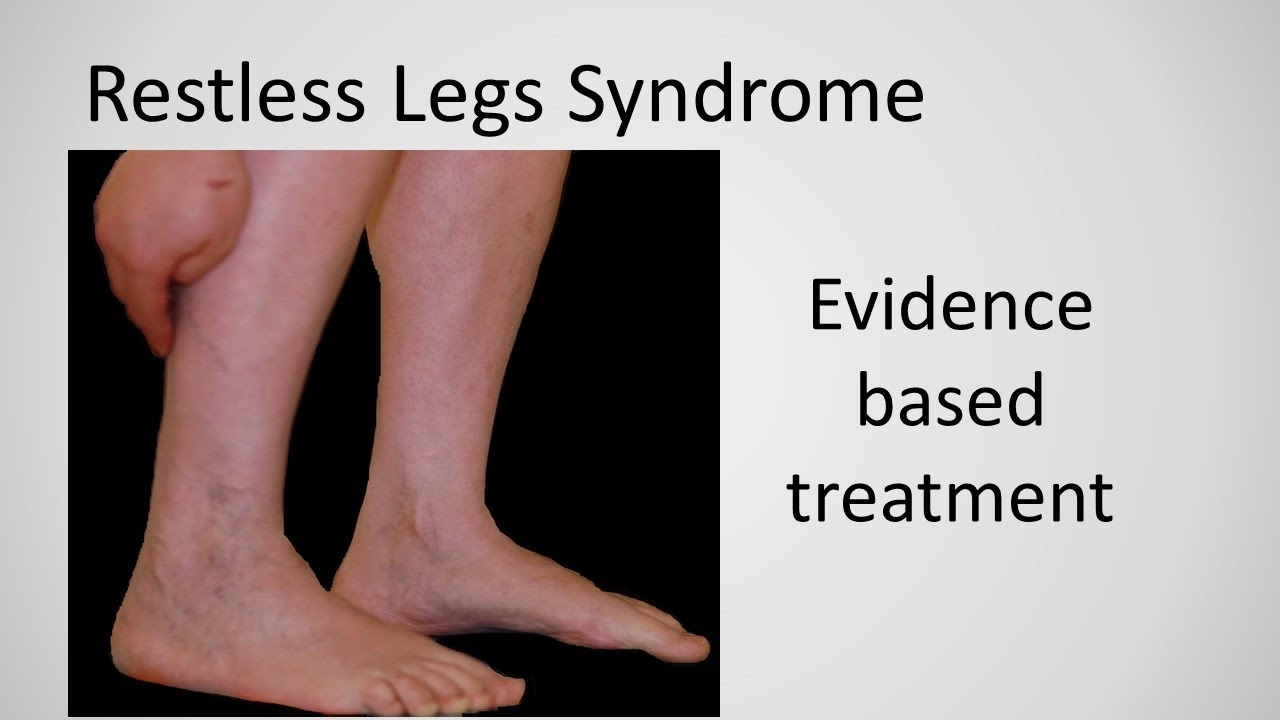 restless leg syndrome treatment