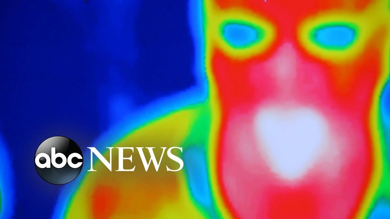A Recent Story Reminds Us That Thermography is Not a