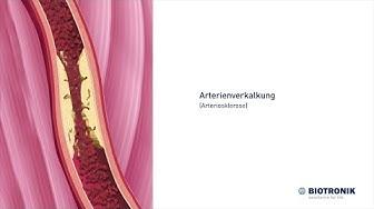 Arterienverkalkung - Arteriosklerose - und Angiografie (Film 8 BIOTRONIK) - Animation Medizin