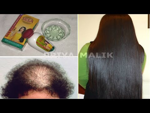 Try This 100% Effective Ayurvedic Hair Oil For Hair Loss & Hair Growth - Sesa Hair Oil | Priya Malik